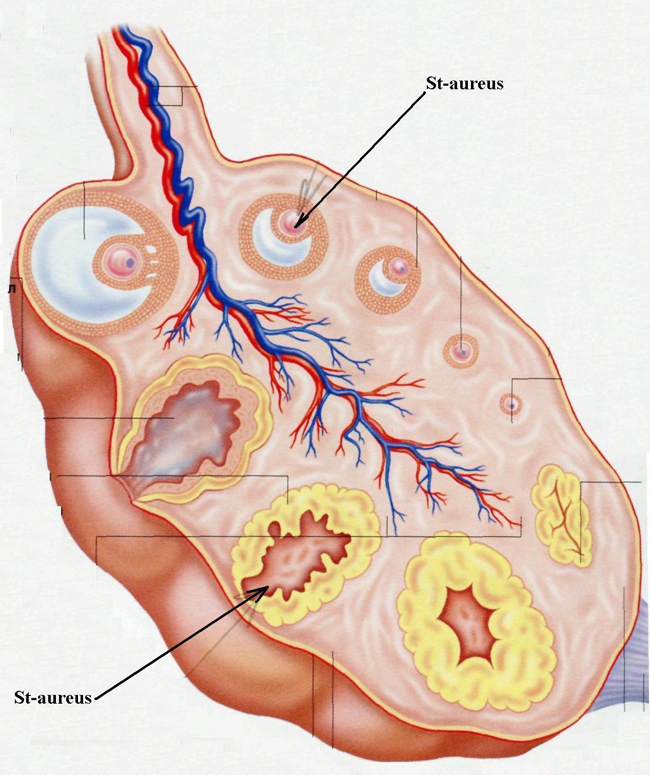 При беременности staphylococcus aureus